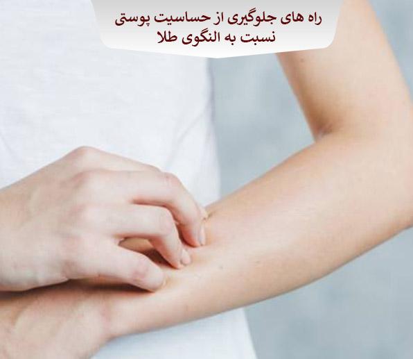 راه های جلوگیری از حساسیت پوستی نسبت به النگوی طلا
